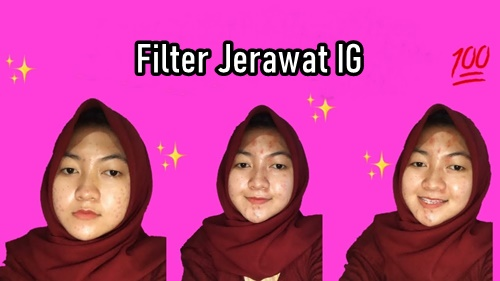 Filter Jerawat IG Adalah Filter Acne Instagram